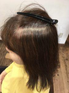 頭皮が弱い人にヘナ施術をするビフォ―写真